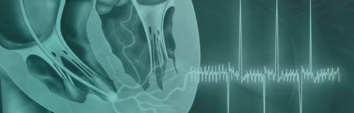 Illustration medicale - rythme cardiaque