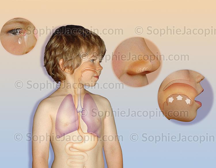 Illustration medicale_Portes d'entrée