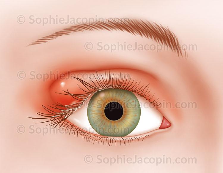 Illustration medicale_Pathologies oeil