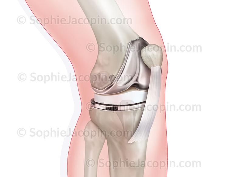 Illustration medicale_Prothèse du genou