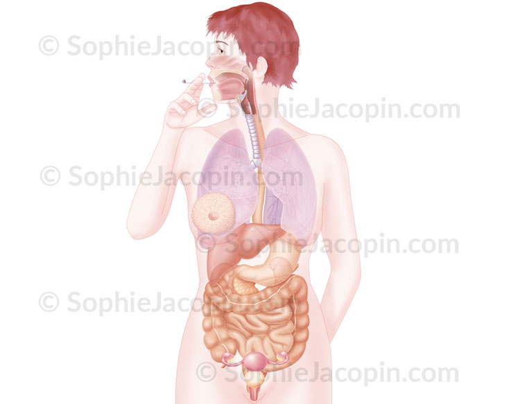 Illustration medicale_Cancers du fumeur
