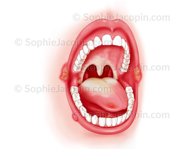 Illustration medicale_Pathologies bouche