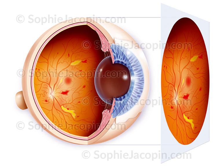 Illustration medicale_Rétinopathie diabétique