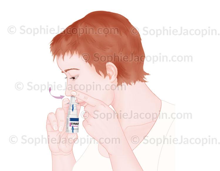 Illustration medicale_Pulvérisation-mode d'emploi