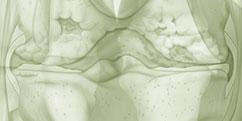 Spécialités Médicales - Rhumatologie - Genou