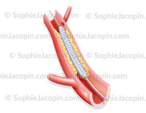 Angioplastie par endoprothèse