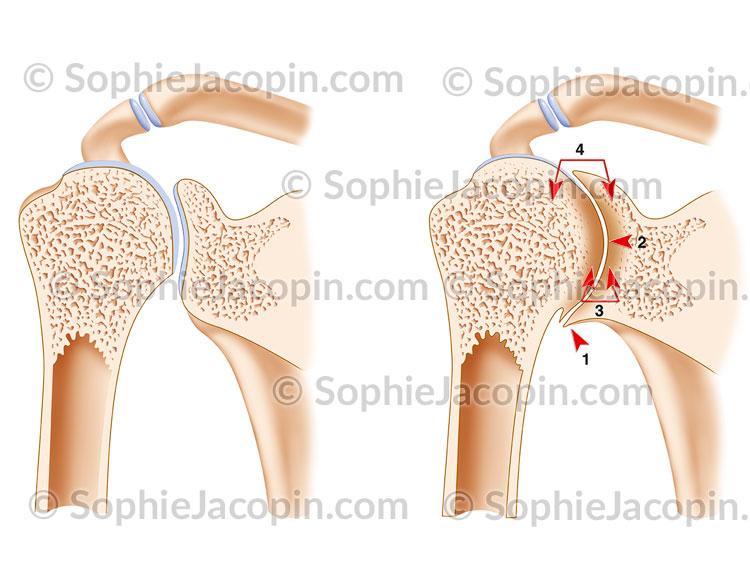 Arthropathie hémophilique épaule