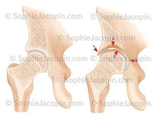 Arthropathie hémophilique hanche