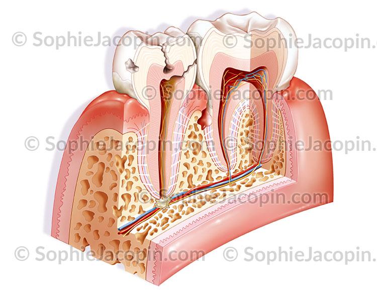 Pathologies des dents