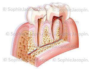 Carie de la pulpe dentaire