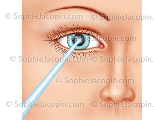 Chirurgie oculaire - Laser