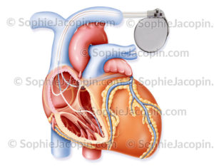Cardiomyopathie sous pacemaker