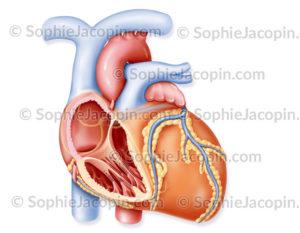 Cardiomyopathie -myocardiopathie