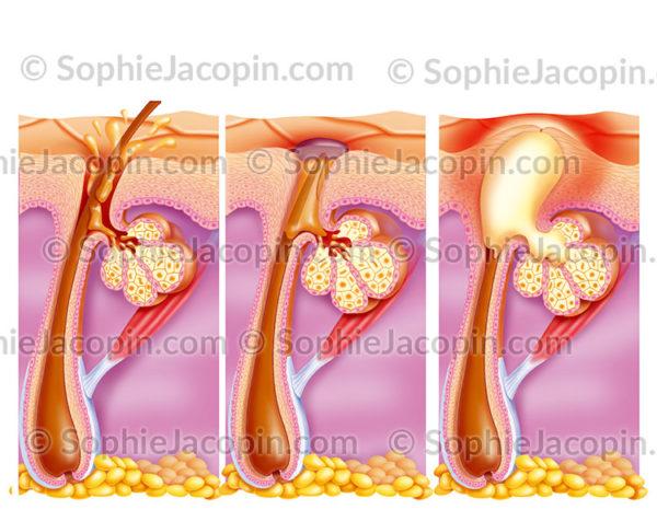 Bouton d'acné