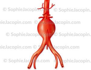 Anévrisme de l'aorte sous rénale