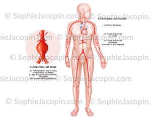 Anévrisme de l'aorte