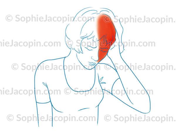 Migraine, maux de tête, céphalées - © sophie jacopin