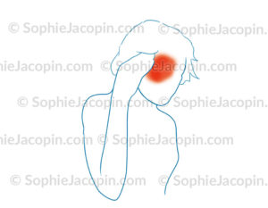 Migraine ophtalmique