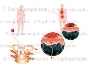 Zona ou réactivation de la varicelle, pathologie déclenchée par le virus varicelle-zona ou VZV de la famille des herpes virus - © sophie jacopin