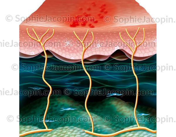 Varicelle zona, virus varicelle-zona ou VZV, pathologie - © sophie jacopin