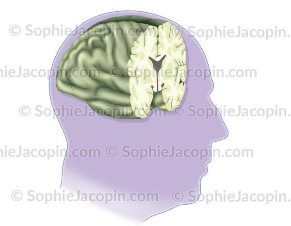 Coupe frontale du cerveau