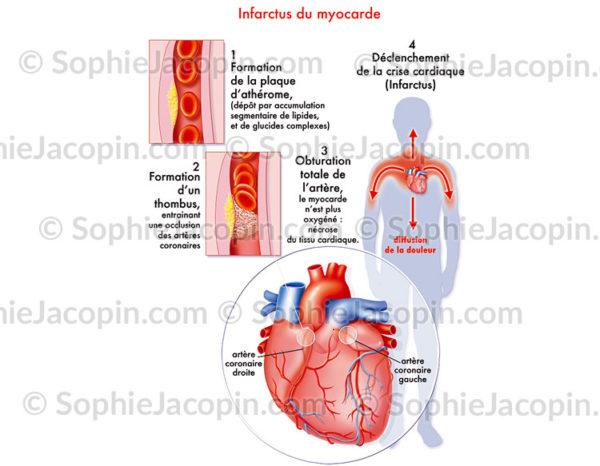 Infarctus du myocarde ou crise cardiaque, étapes de la formation et du déclenchement de la crise - C sophie jacopin