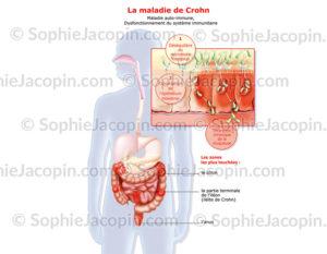 Maladie de Crohn, maladie auto-immune, localisation des zones touchées au niveau du côlon - © sophie jacopin