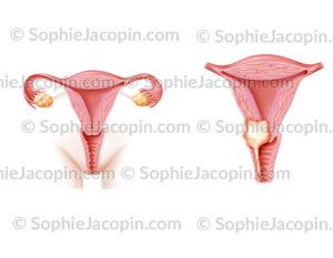 Cancer col de l'utérus stade III A