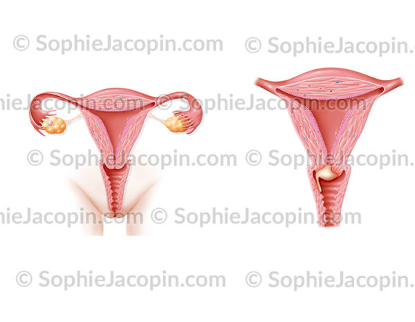 Cancer col de l'utérus stade I B1