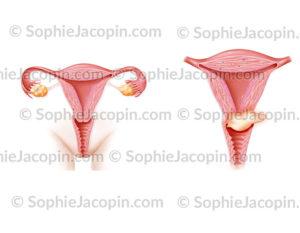 Cancer col de l'utérus stade II B