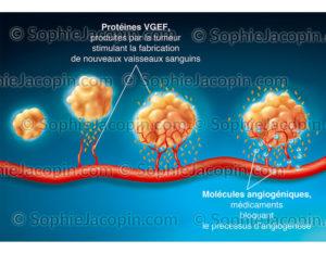 Médicaments anti-angogéniques