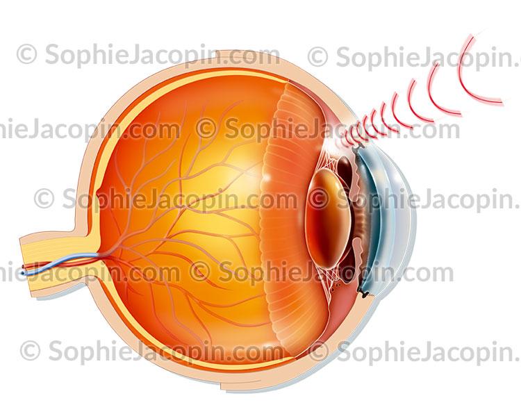 Glaucome traitement par ultrasons