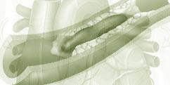 Spécialités Médicales - Cardiologie / Angiologie - Vaisseaux / Thrombose (Phlébite - Embolie)