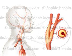 Sténose de la carotide