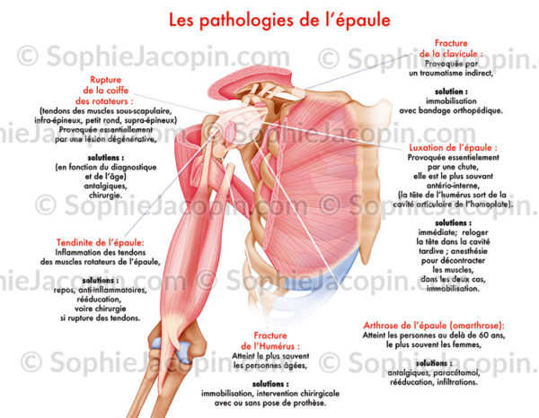 Pathologies épaule