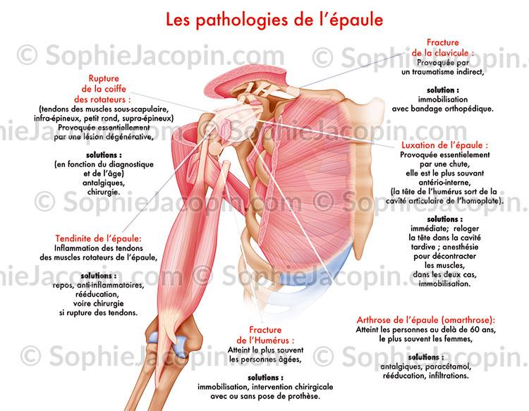 Pathologies épaule