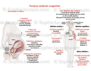 Paralysie cérébrale congénitale