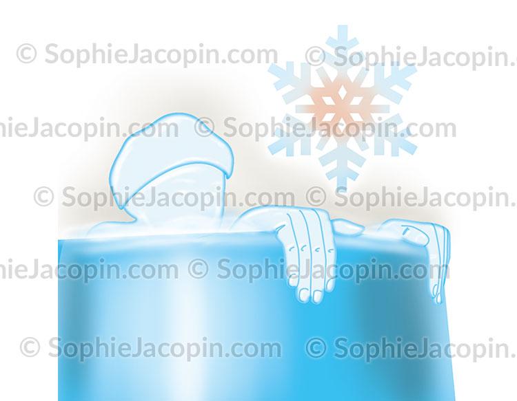 Traitement des rhumatismes