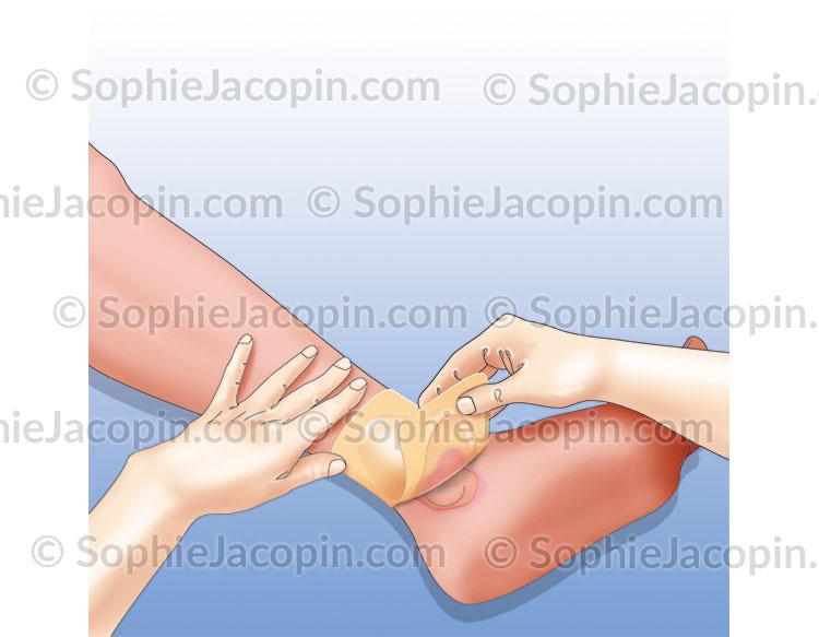 Retrait pansement cicatrisant imperméable