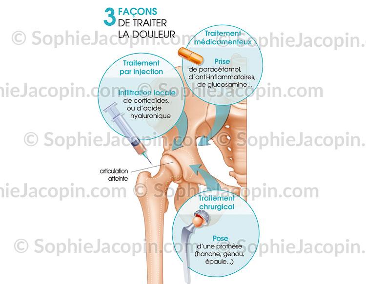 Traitements douleurs articulaires