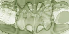 Anatomie - Système osseux - Squelette Colonne vertébrale / Vertèbres