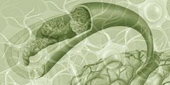 Pathologies - Système nerveux central - AVC