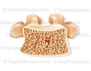 Structure d''une vertèbre atteinte d'ostéoporose