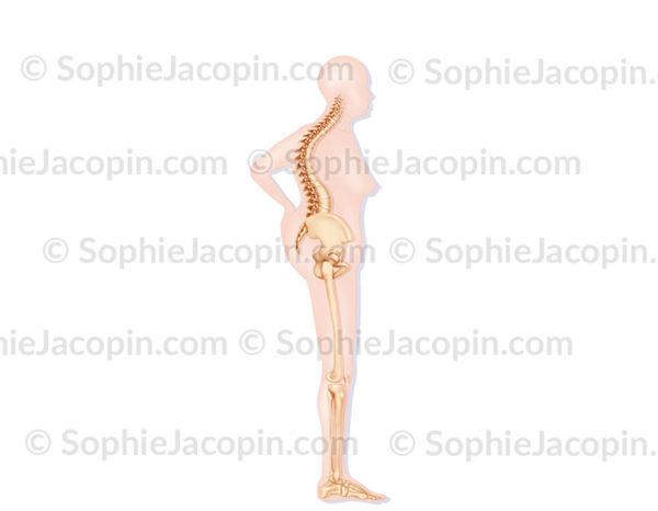Silhouette de femme de 70 ans atteinte d''ostéoporose