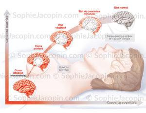 Les stades du coma