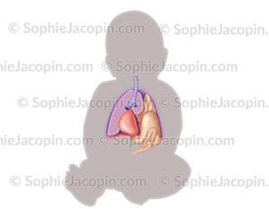 Hernie diaphragmatique foetale