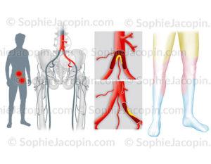 Sténose et occlusion artérielle des membres inférieurs