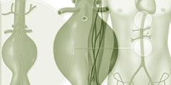 Spécialités Médicales - Cardiologie / Angiologie - Vaisseaux / Anévrisme