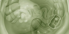 Spécialités Médicales - Cancérologie / Oncologie - Cancers Système digestif