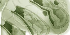 Spécialités Médicales - Cardiologie / Angiologie - Coronarienne / Infarctus du myocarde